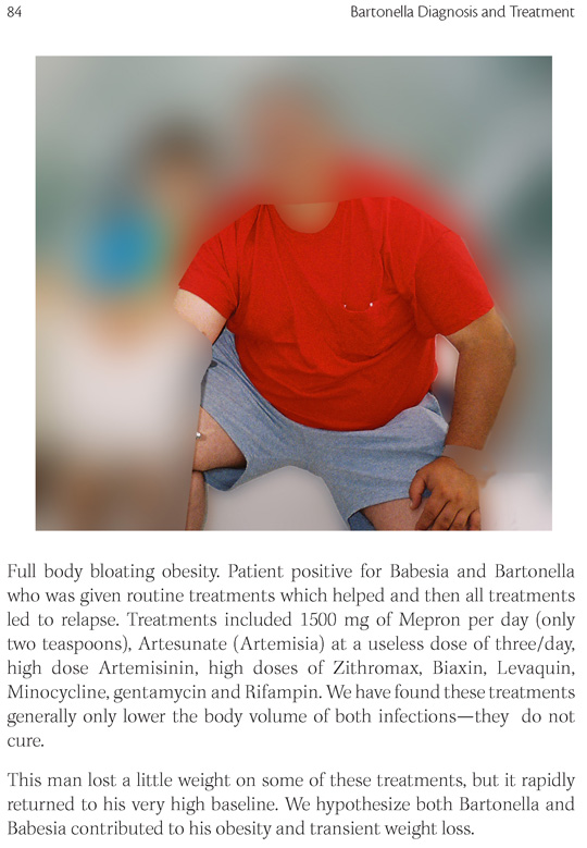 Bartonella Babesia Lyme Mold Obesity Weight Gain Causes Treatment